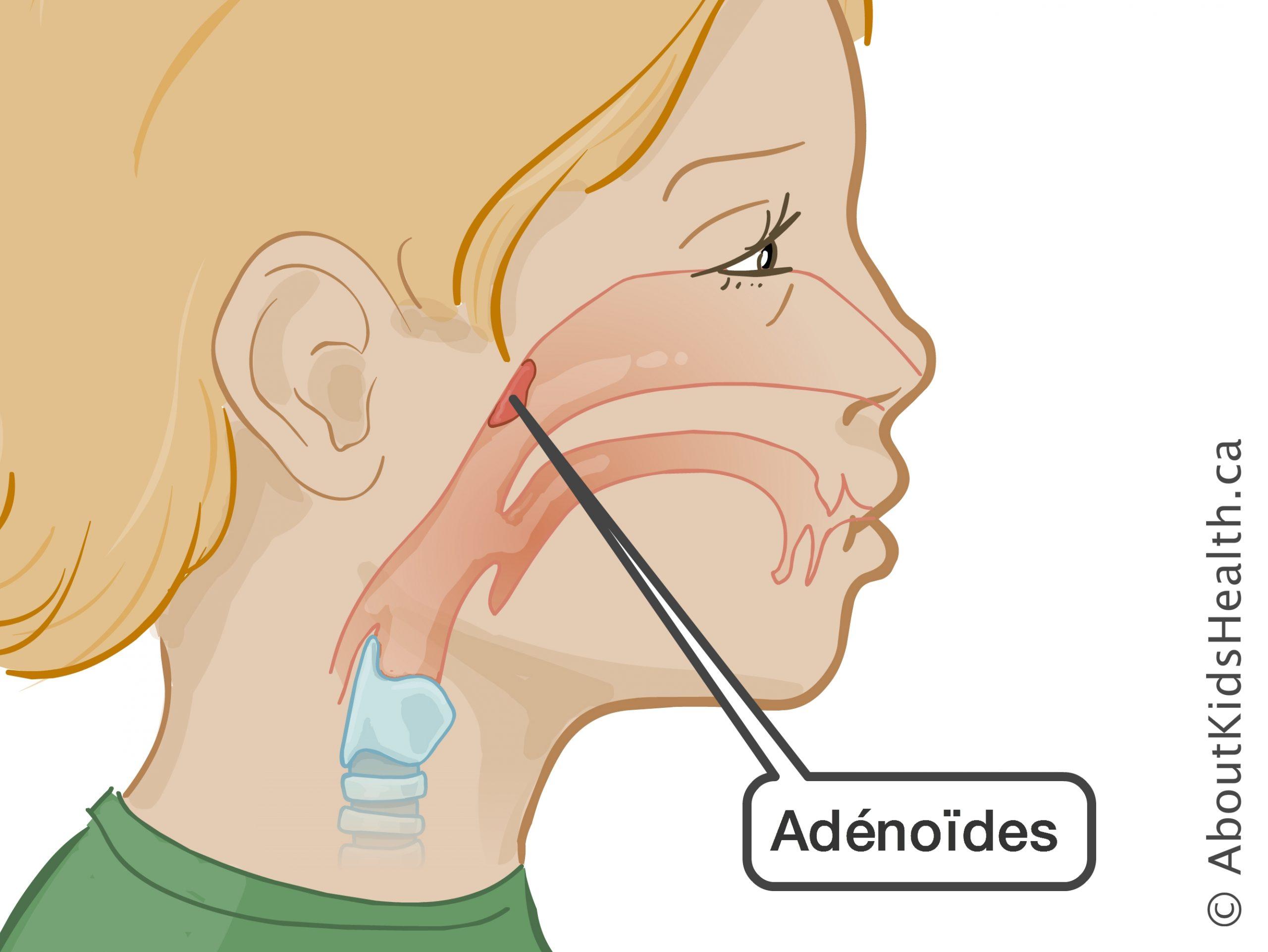 recreer-la-sinusite-les-vegetations-adenoides-et-le-reflux-peuvent-egalement-etre-causes-scaled.jpg.jpg